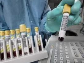 उत्तराखंड में आज मिले 37 नए मामले, राज्य में कुल संक्रमितों की संख्या हुई 958